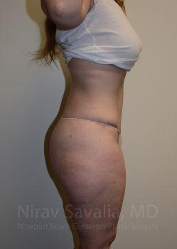 Abdominoplasty / Tummy Tuck Gallery - Patient 1655670 - Image 10