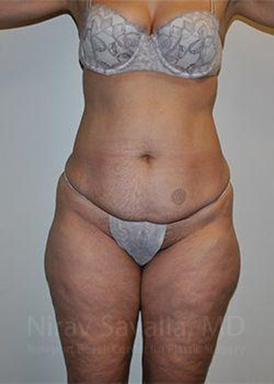 Abdominoplasty / Tummy Tuck Gallery - Patient 1655672 - Image 1
