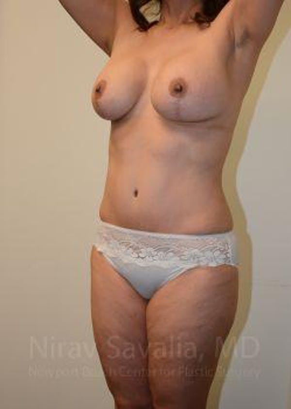 Abdominoplasty / Tummy Tuck Gallery - Patient 1655675 - Image 10