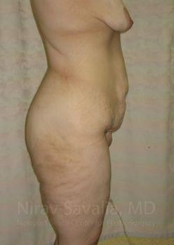 Abdominoplasty / Tummy Tuck Gallery - Patient 1655677 - Image 7