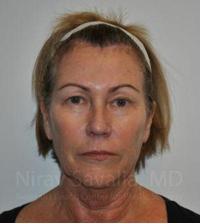 Brow Lift Gallery - Patient 1655680 - Image 1