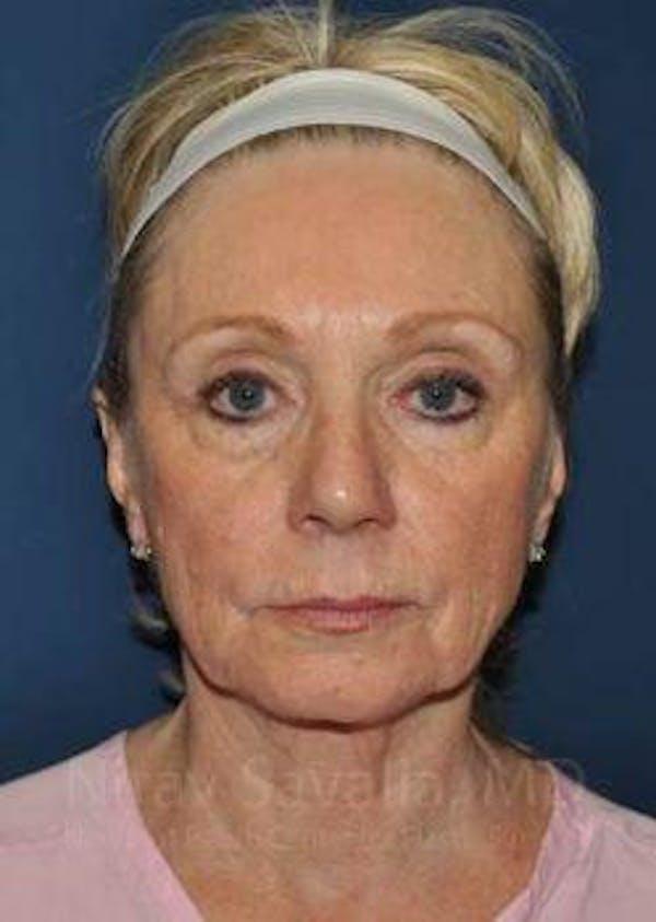 Facelift Gallery - Patient 1655682 - Image 1