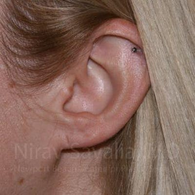 Torn Earlobe Repair / Ear Gauge Repair Gallery - Patient 1655679 - Image 1