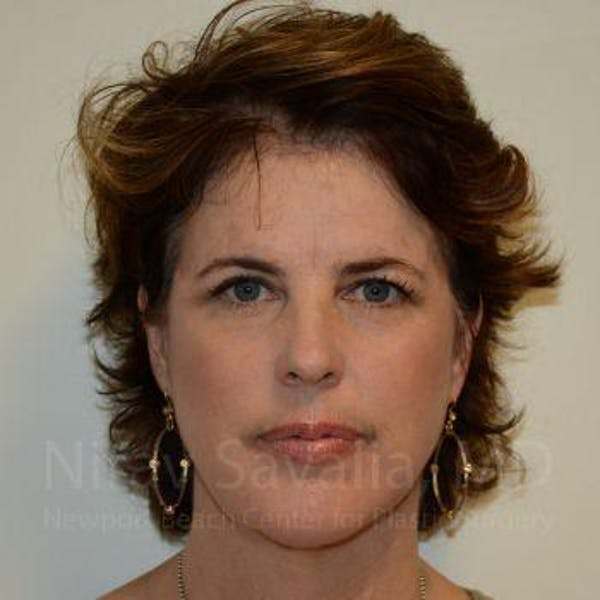Eyelid Surgery Gallery - Patient 1655683 - Image 2