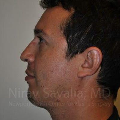 Chin Implants Gallery - Patient 1655678 - Image 2
