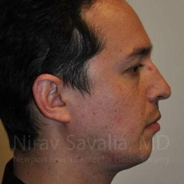 Chin Implants Gallery - Patient 1655678 - Image 3