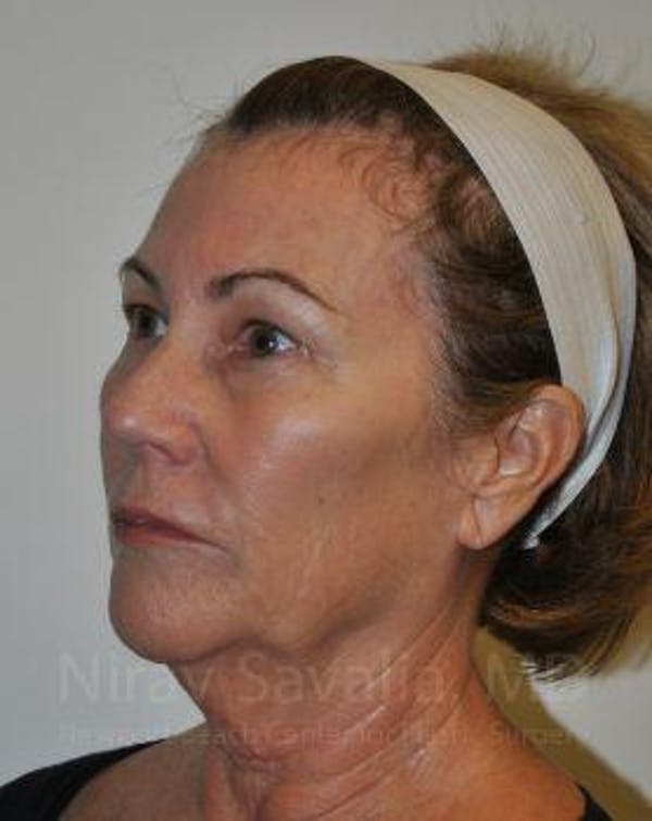 Brow Lift Gallery - Patient 1655680 - Image 3