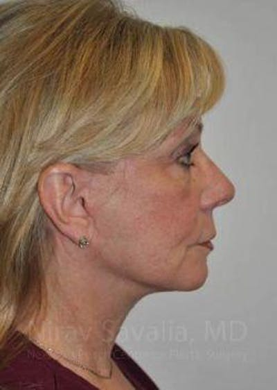 Facelift Gallery - Patient 1655682 - Image 4