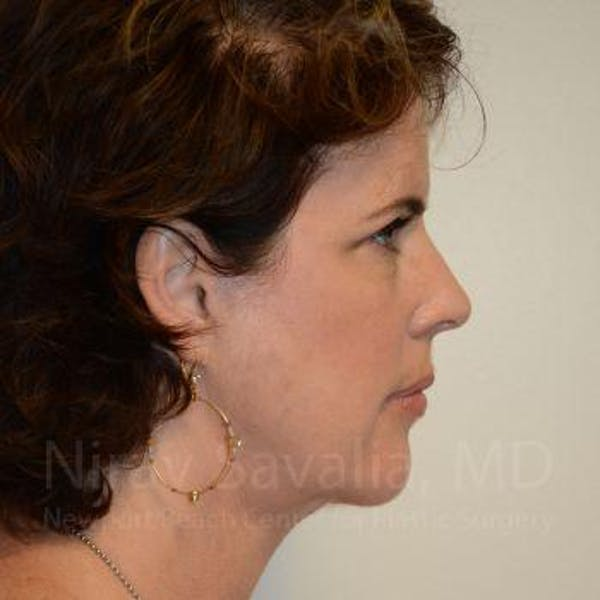 Eyelid Surgery Gallery - Patient 1655683 - Image 4