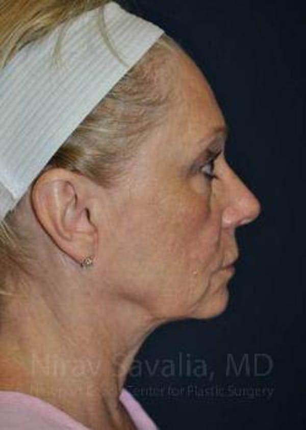 Fat Grafting to Face Gallery - Patient 1655681 - Image 3