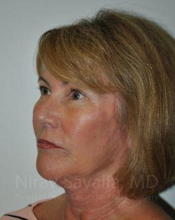 Brow Lift Gallery - Patient 1655680 - Image 4