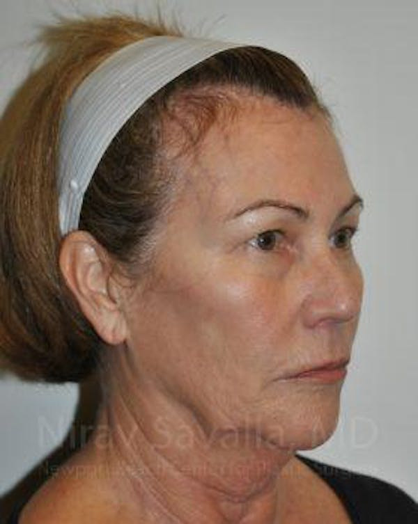 Brow Lift Gallery - Patient 1655680 - Image 5