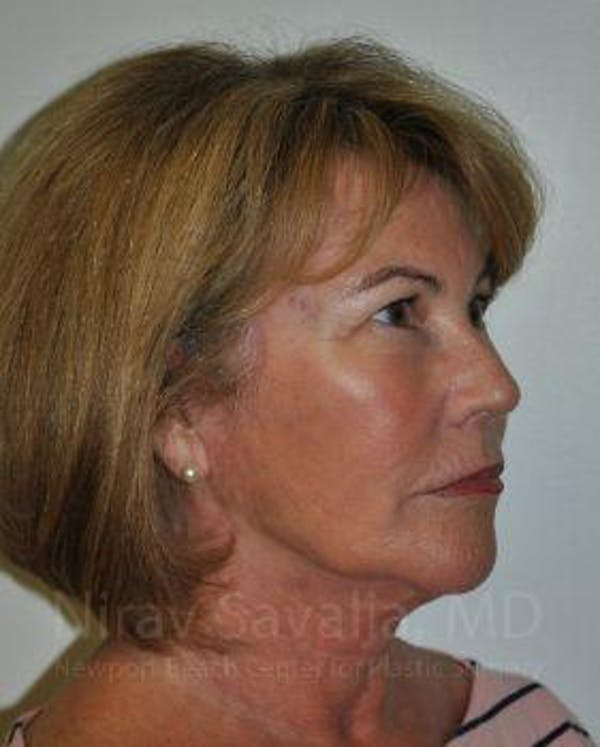 Brow Lift Gallery - Patient 1655680 - Image 6