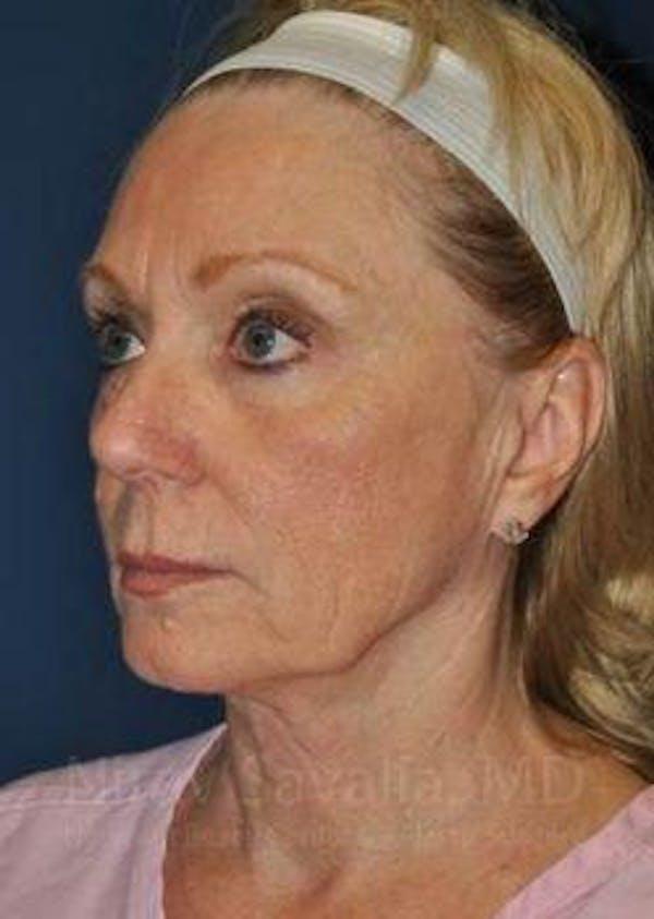 Facelift Gallery - Patient 1655682 - Image 7