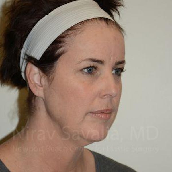 Eyelid Surgery Gallery - Patient 1655683 - Image 7