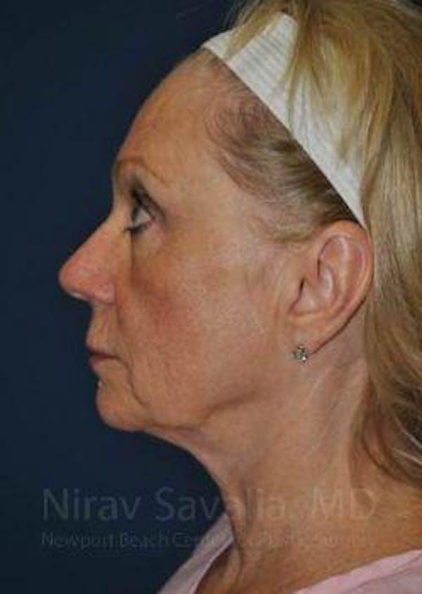 Facelift Gallery - Patient 1655682 - Image 9