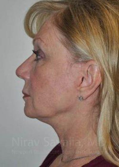 Fat Grafting to Face Gallery - Patient 1655681 - Image 10