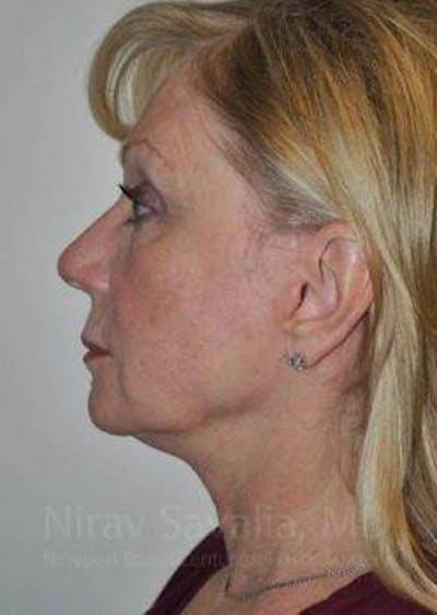 Facelift Gallery - Patient 1655682 - Image 10