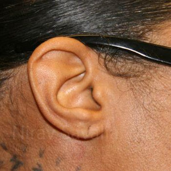 Torn Earlobe Repair / Ear Gauge Repair Gallery - Patient 1655684 - Image 3