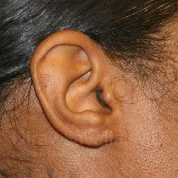 Torn Earlobe Repair / Ear Gauge Repair Gallery - Patient 1655684 - Image 4