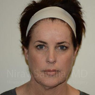 Facelift Gallery - Patient 1655689 - Image 1