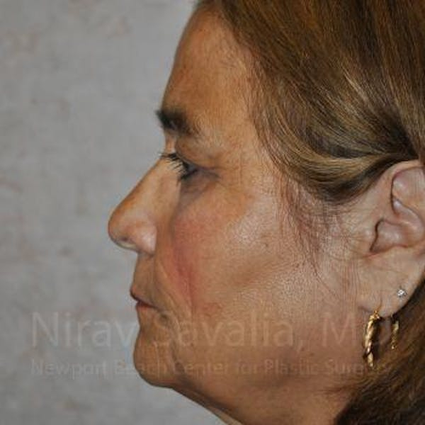 Brow Lift Gallery - Patient 1655687 - Image 3