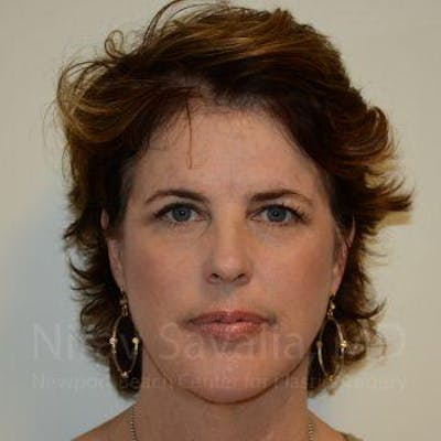 Fat Grafting to Face Gallery - Patient 1655688 - Image 2
