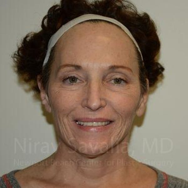 Eyelid Surgery Gallery - Patient 1655690 - Image 1
