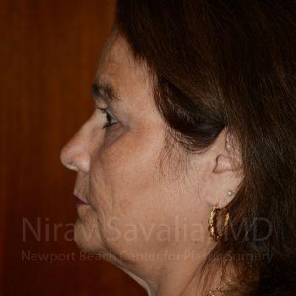 Brow Lift Gallery - Patient 1655687 - Image 4