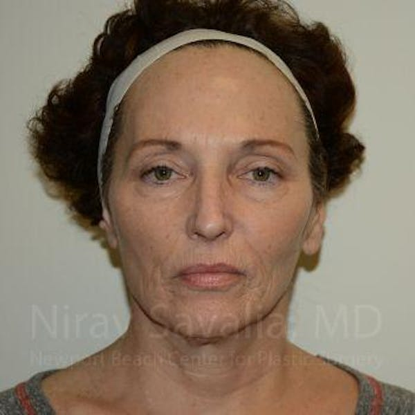 Eyelid Surgery Gallery - Patient 1655690 - Image 3