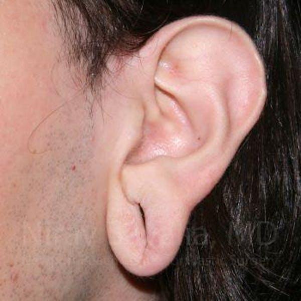 Torn Earlobe Repair / Ear Gauge Repair Gallery - Patient 1655686 - Image 1