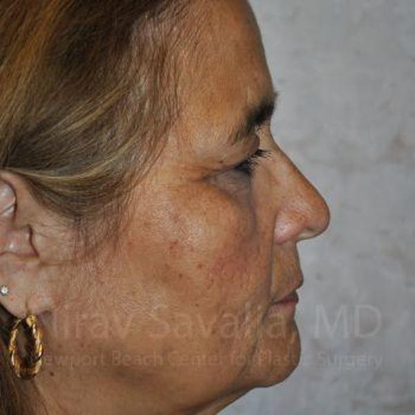 Brow Lift Gallery - Patient 1655687 - Image 5