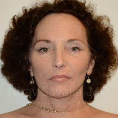 Eyelid Surgery Gallery - Patient 1655690 - Image 4