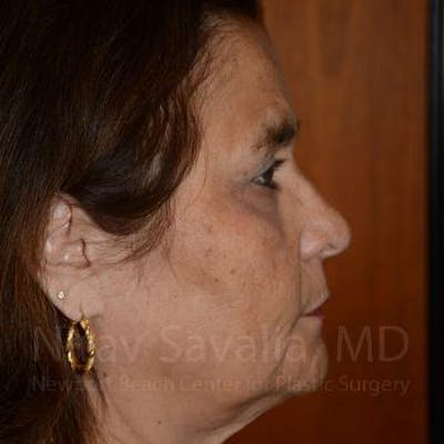 Brow Lift Gallery - Patient 1655687 - Image 6