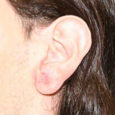Torn Earlobe Repair / Ear Gauge Repair Gallery - Patient 1655686 - Image 2