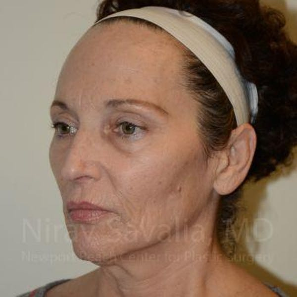 Eyelid Surgery Gallery - Patient 1655690 - Image 5