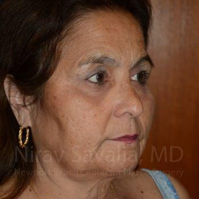 Brow Lift Gallery - Patient 1655687 - Image 10