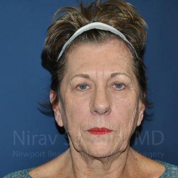 Brow Lift Gallery - Patient 1655696 - Image 1
