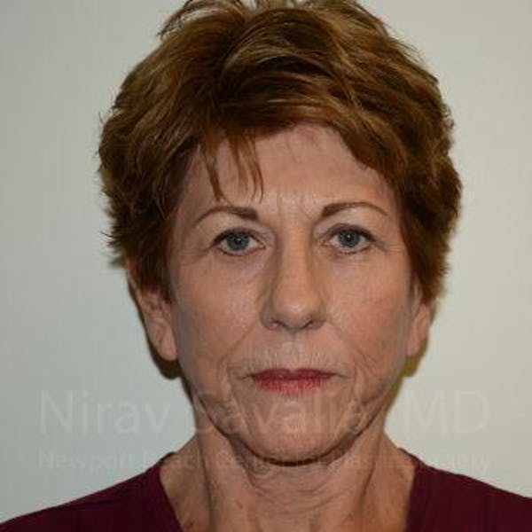 Brow Lift Gallery - Patient 1655696 - Image 2