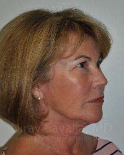 Facelift Gallery - Patient 1655695 - Image 6
