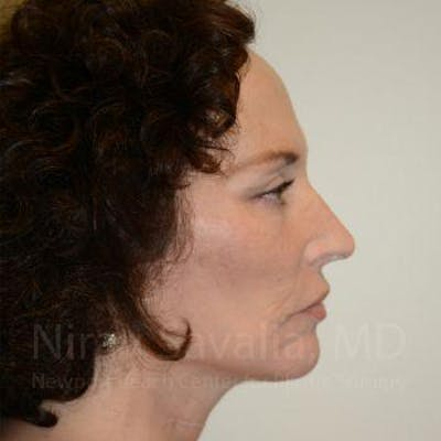 Fat Grafting to Face Gallery - Patient 1655693 - Image 8