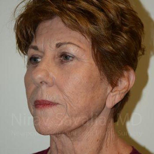 Brow Lift Gallery - Patient 1655696 - Image 8