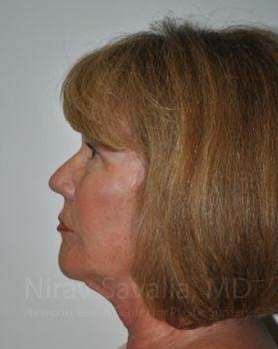 Facelift Gallery - Patient 1655695 - Image 8