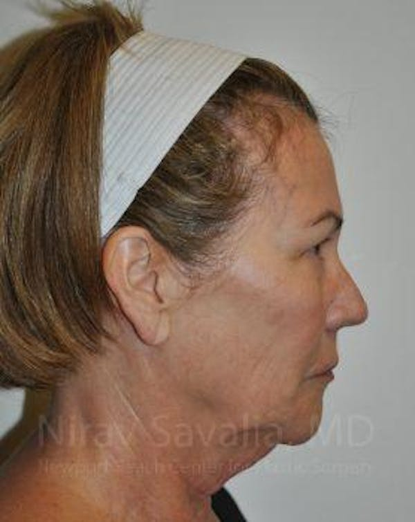Eyelid Surgery Gallery - Patient 1655694 - Image 9
