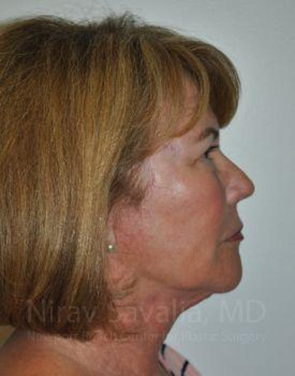 Eyelid Surgery Gallery - Patient 1655694 - Image 10