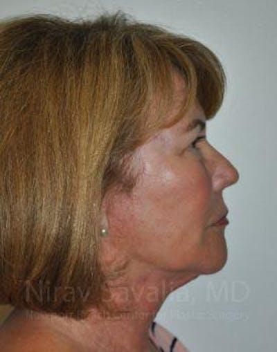 Facelift Gallery - Patient 1655695 - Image 10