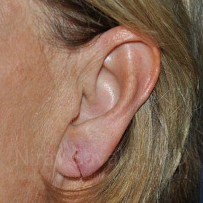 Torn Earlobe Repair / Ear Gauge Repair Gallery - Patient 1655697 - Image 1