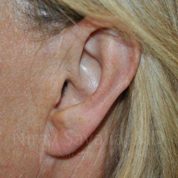 Torn Earlobe Repair / Ear Gauge Repair Gallery - Patient 1655697 - Image 2