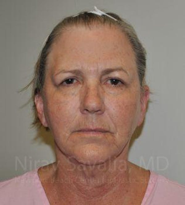Facelift Gallery - Patient 1655699 - Image 1