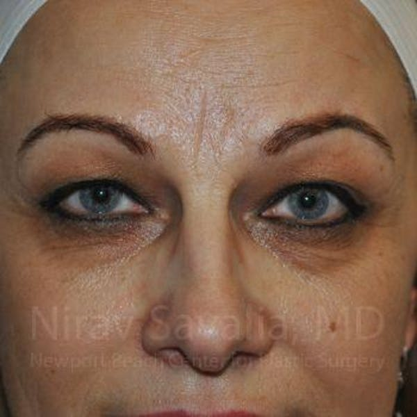 Eyelid Surgery Gallery - Patient 1655701 - Image 1